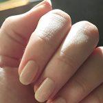 爪に縦線やでこぼこができる原因は?治し方や有効な薬を調べた!